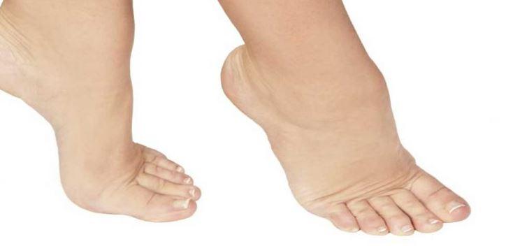 علت ورم پا در بیماران سرطانی